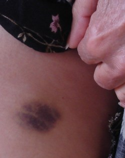 hip bruise 1 crop