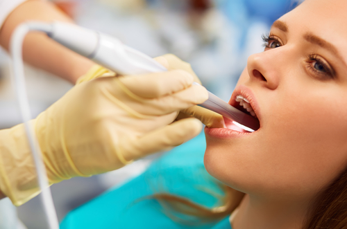 Top 4 Ways to Prevent Cavities
