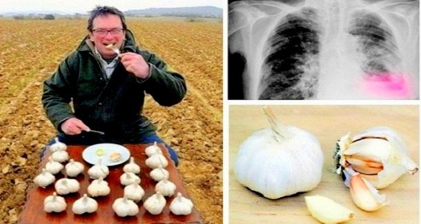 El comenzó a comer ajo todos los días, en ayunas. Y Esto fue lo que sucedió