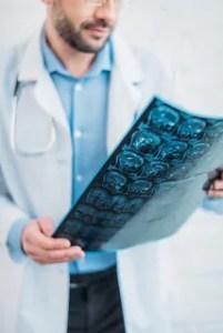 Esclerose múltipla: sintomas diversos podem confundir diagnóstico