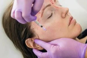 Vampire Facial: entenda o procedimento que usa o sangue do próprio paciente para rejuvenescer a pele