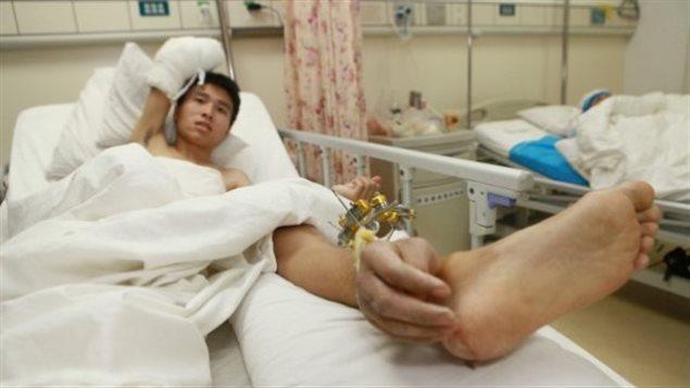 Une main greffée provisoirement sur une jambe