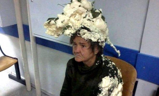 Elle se retrouve à l'hôpital après avoir utilisé de la mousse isolante comme mousse à cheveux