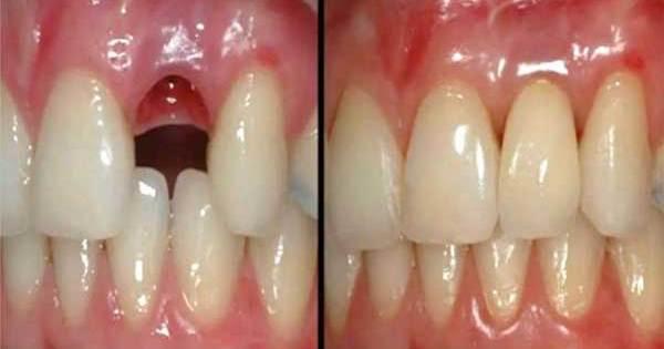 Les dentistes peuvent faire repousser des dents en quelques semaines. Adieu les implants !