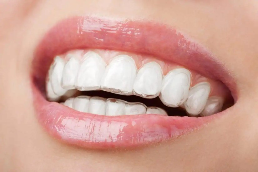 Looking for Invisalign