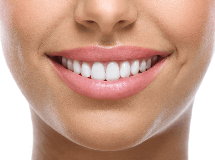 Teeth Whitening in Bradenton and Preventing Stains