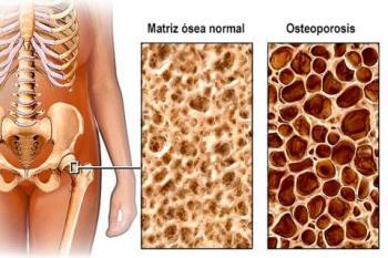 Consecuencias osteoporosis