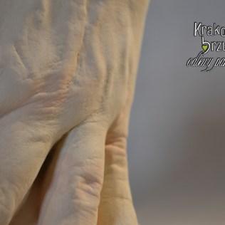 odlew stopy osoba dorosła (4)