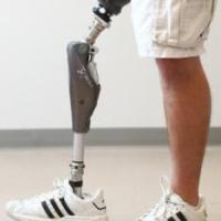 Chega ao Brasil perna biônica da Otto Bock