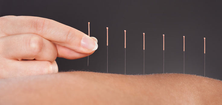 Image result for acupuncture needles in back pictures