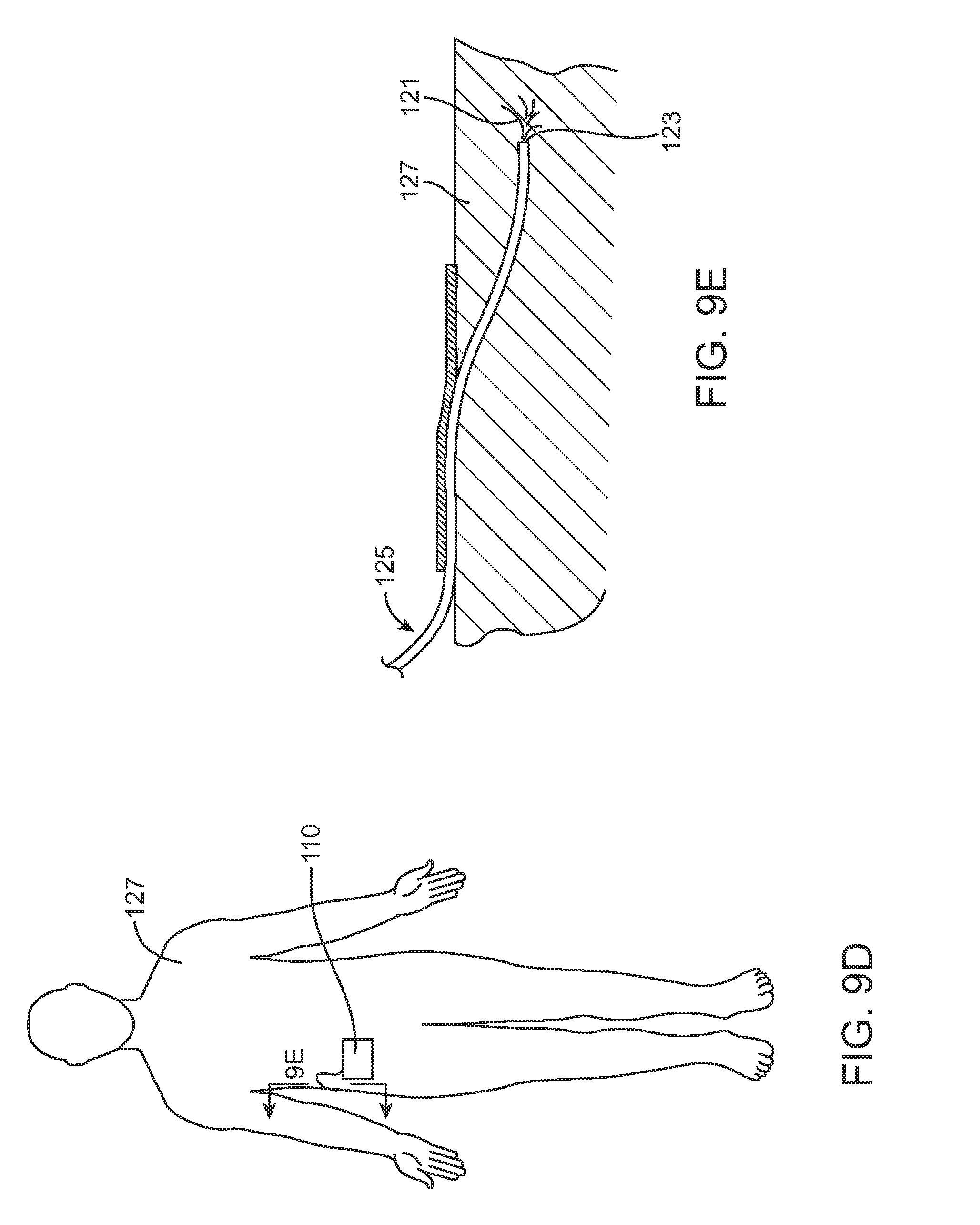 Us8758323b2 infusion pump system with disposable cartridge having pressure venting and pressure feedback patents