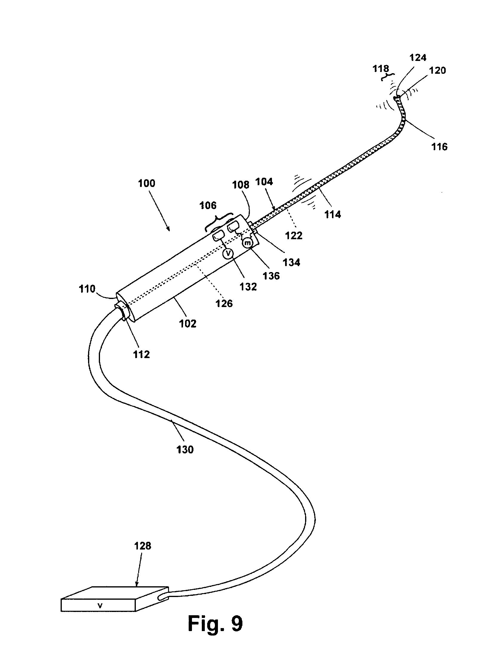 Fluid Eustachian Tube Diagram