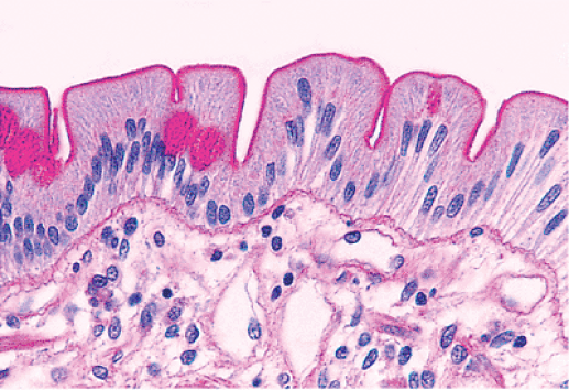 Carbohydrate staining- Periodic acid-Schiff (PAS) stain highlights the microvillous along the apical surface of the absorptive cells.