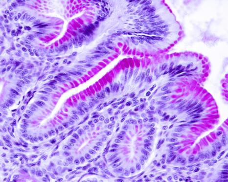 carbohydrate staining- PAS stained gastric foveolar cells