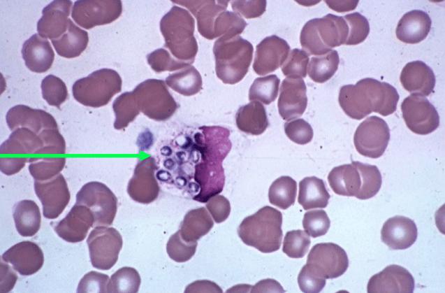 Histoplasma has a characteristic crescent shaped nucleus.(green arrow)