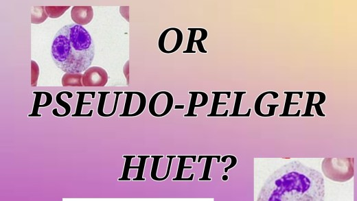 Differentiating congenital pelger-huet anomaly and acquired pseudo-pelger huet anomaly