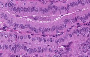 tall cell variant of papillary thyroid carcinoma