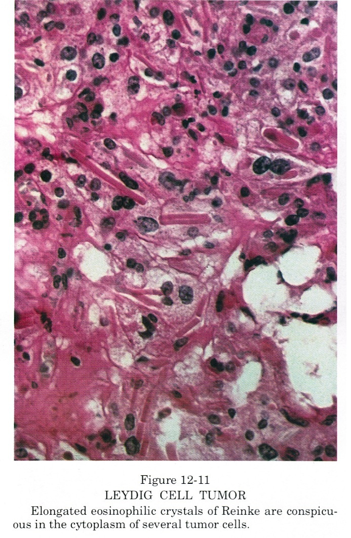 Pathology Outlines Leydig Cell Tumor Hilus Cell Tumor
