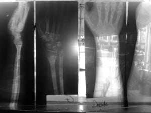 X-rays of my hands from Phonsavan. Not the souvenirs I wanted from my first trip to Laos.