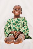 Herve strikes a pose for the medical photographer in preparation for getting his casts set.