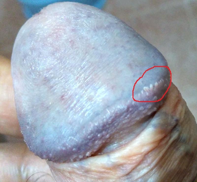 Dry Flaky Skin On Penile Shaft Std | Diydrywalls.org