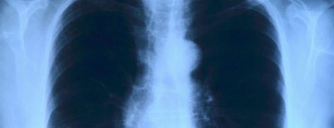 Si usted lo tiene sarcoidosis, usted necesita saber esto
