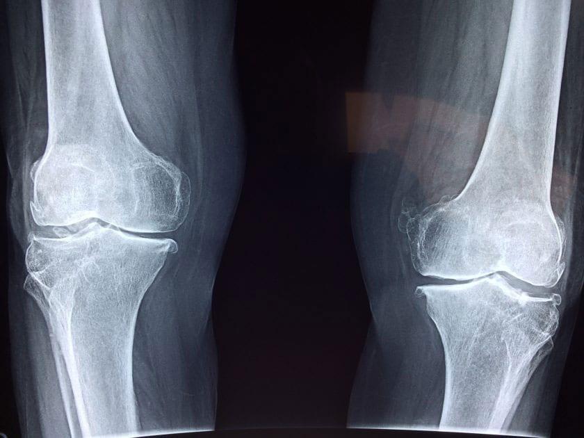 Can Peripheral Spondyloarthritis Be Reversed?