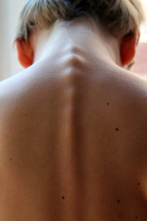 Study Suggests Pain in Ankylosing Spondylitis May Not Be Caused by Spine Inflammation