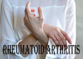Things You Should Know About Rheumatoid Arthritis