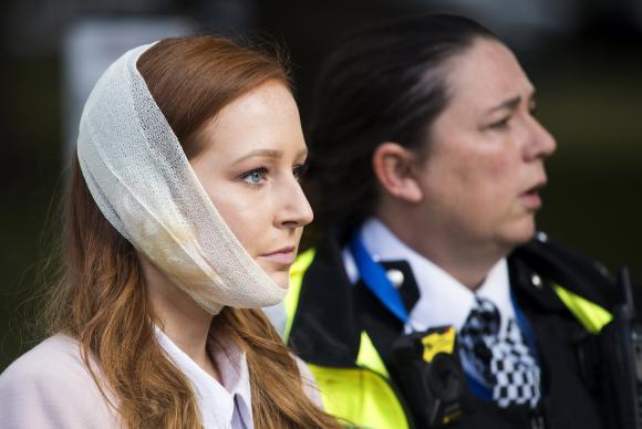 Passageira do metrô de Londres fica ferida em explosão - Divulgação Agência EFE