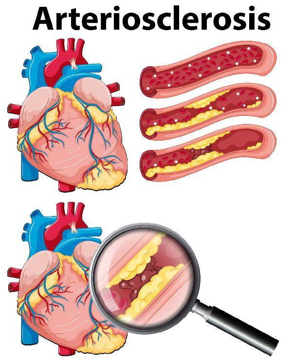 """Wenn es eng wird, droht Herzinfarkt: Ansammlungen in den Arterien - sogenannte """"Plaques"""" können den Blutdurchfluss behindern und zum Herztod führen."""