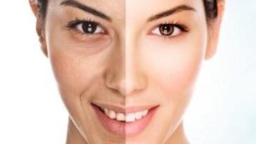 envelhecimento - Cremes Anti-Idade Funcionam Mesmo?