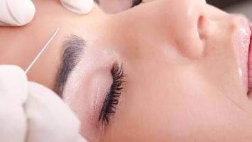 foto6cuidadosespeciaistratamentoscicatrizesacne - Peelings Químicos: Renove Sua Pele Já!