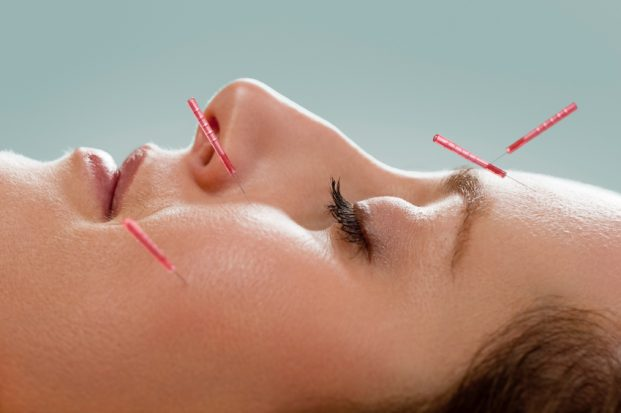 iStock 000012541657 Small 621x413 - Acupuntura trata ansiedade, olheiras e até manchas!