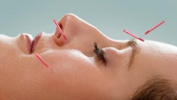 iStock 000012541657 Small - Acupuntura trata ansiedade, olheiras e até manchas!