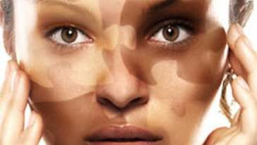 Captura de tela inteira 01072013 203438 - Vitiligo: O Que Você Precisa Saber!