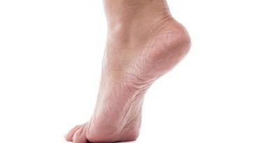 iStock 611880436 - Rachadura nos pés - o que Fazer?