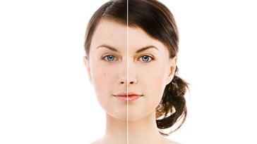 tratar pele2 - Ácido Hialurônico: Um Bálsamo Para Sua Pele!