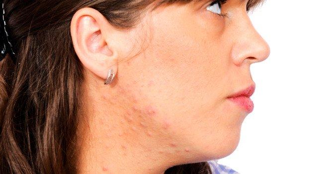 doenca pele emocional 650x350 - Doenças de Pele Causadas ou Agravadas pelo Estresse!