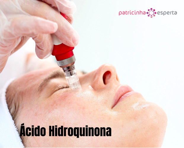 microneedle mesotherapy treatment woman at the beautician picture id857368184 621x500 - Ácido salicílico X Hidroquinona X Mandélico - Qual a diferença?