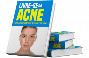livre se da acne ebook 300x196 - Como tirar espinha e acabar de vez