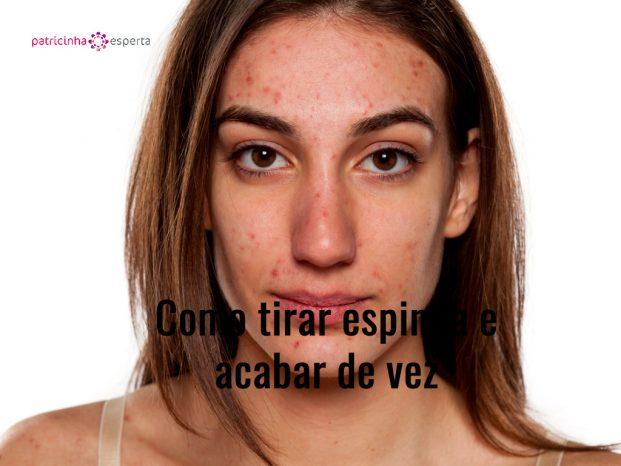 problematic skin picture id514057934 621x466 - Como Tirar Espinha e Acabar De Vez