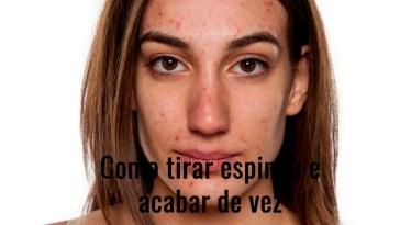 problematic skin picture id514057934 - Como Tirar Espinha e Acabar De Vez