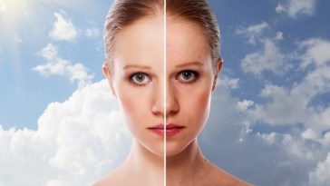 iStock 000021519659 Small - Preparação de pele para disfarçar manchas escuras no rosto