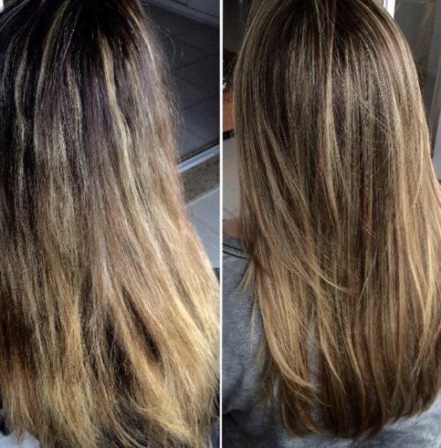 antes e depois exo hair - Exoplastia Capilar Nanotrônica Exo Hair