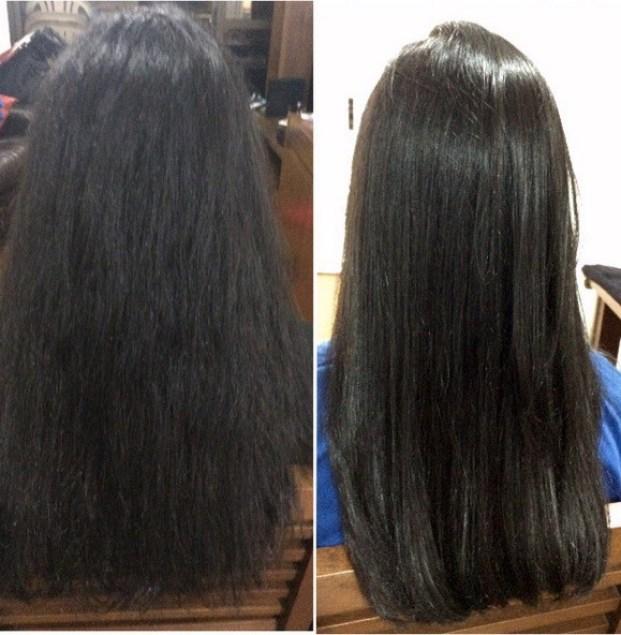 exo hair resultado - Exoplastia Capilar Nanotrônica Exo Hair