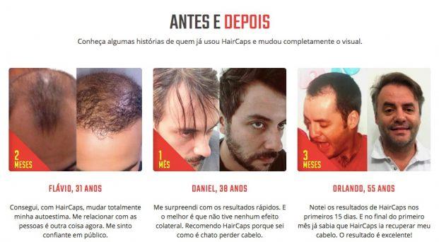 antes e depois haircaps.com .br  621x342 - Como Fazer o Cabelo Crescer Mais Rápido [novo]