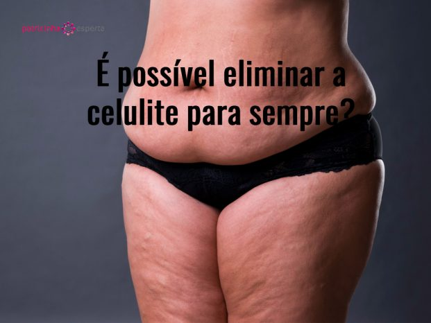 woman with fat abdomen overweight female stomach stretch marks on picture id665329496 621x466 - Celulite Nas Pernas Tratamentos! O Guia Completo