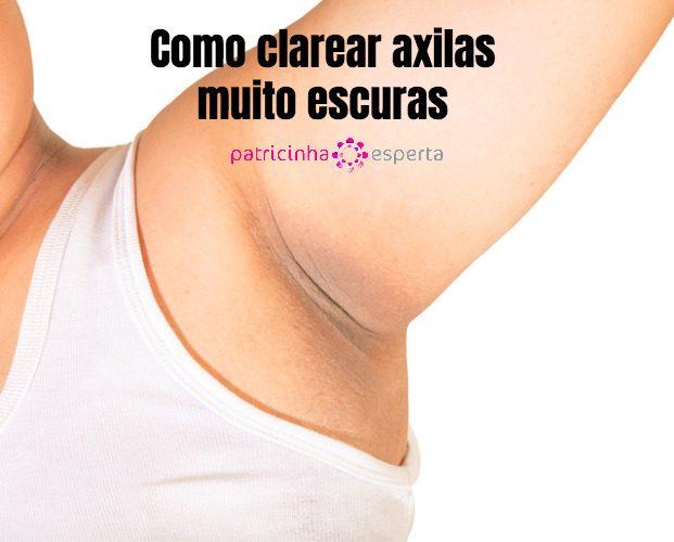 black armpit picture id673323164 621x500 - Como Clarear Axilas Escuras?