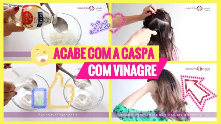 Untitled design46 - Receita para Caspa com Vinagre
